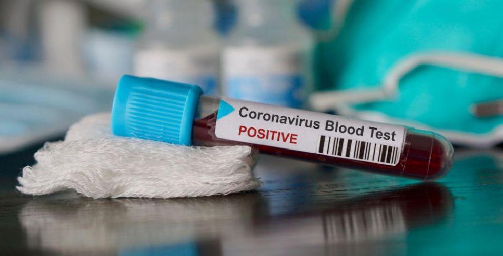 ما هي احتمالات إصابتك بمرض كوفيد-19 ؟
