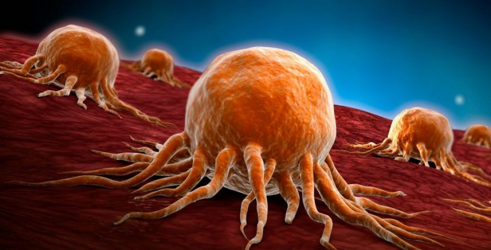 السرطان ثاني سبب للوفاة في العالم بعد القلب،ويتقدّم