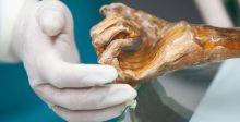 رجلُ الجليد مصابٌ ببكتيريا مجهولة